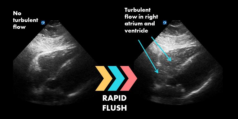 Rapid flush image